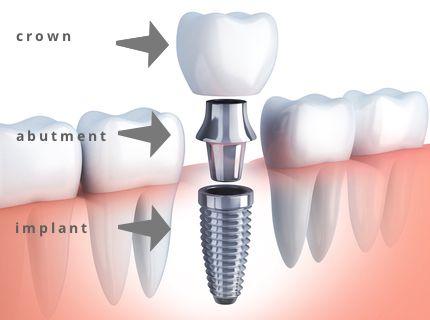 dental-implant-parts.jpg